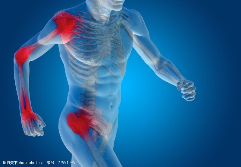 人体器官图人体关节炎图片