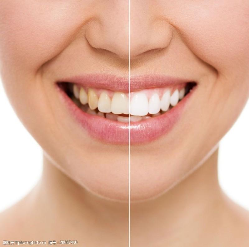 人体器官图洁白牙齿与黄牙齿图片