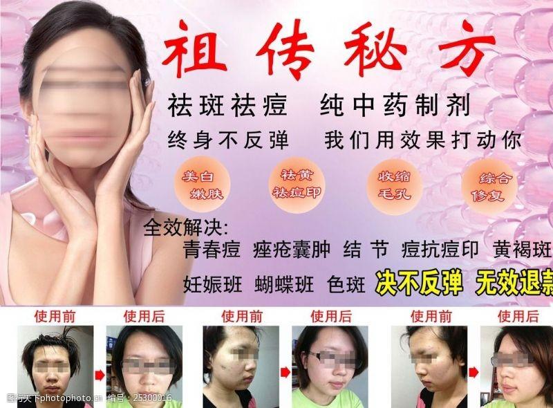 祛斑广告祖传秘方